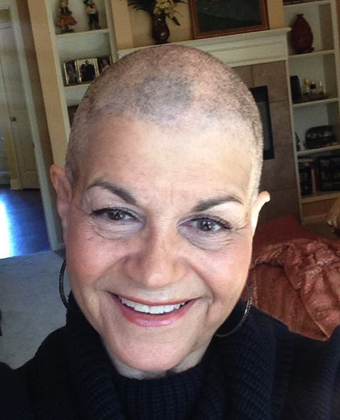 No hair Joan